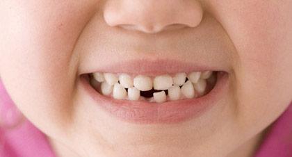 tes dents te rendent bien des services